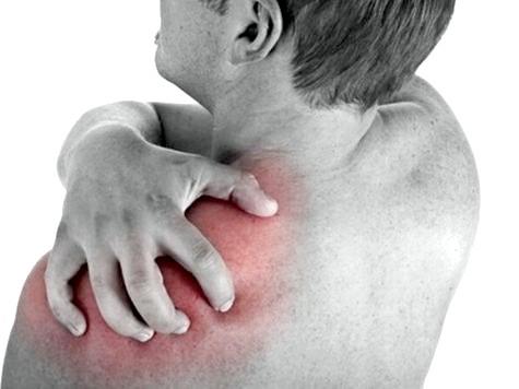 Фото - Остеохондроз плечового суглоба