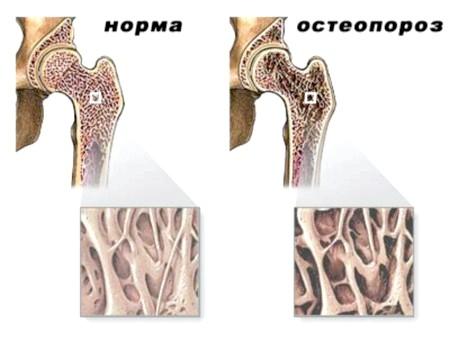 Фото - симптоми та ознаки остеопорозу тазостегнового суглоба