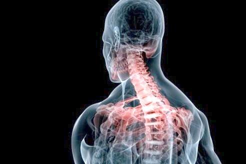 Фото - сколіоз шийного відділу хребта небезпечний здавленням хребетної артерії