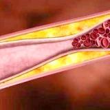 Фото - Фото - Зниження холестерину народними способами
