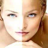 Фото - Фото - Засоби які відбілюють шкіру обличчя