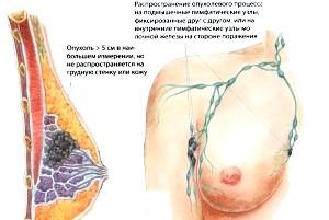 Фото - Пухлинний процес