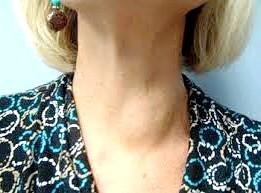 Фото - вузол щитовидної залози