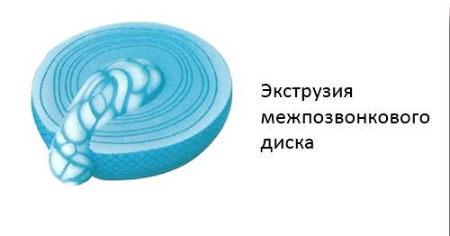 Фото - Екструзія міжхребцевого диска