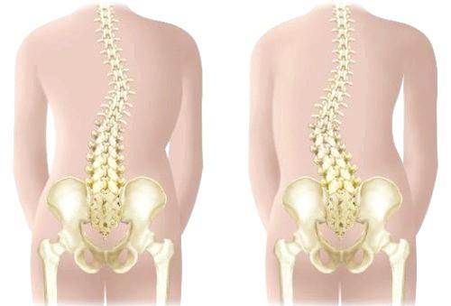 Фото - грудопоперековий сколіоз - це фронтальна деформація хребта в грудному і поперековому відділах