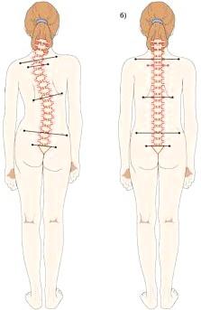 Фото - симптоми грудопоясничного сколіозу 1 і 2 ступеня