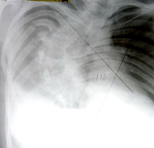 Фото - рентгенограма сколіозу 4 ступеня