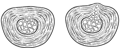 Фото - циркулярна протрузія диска