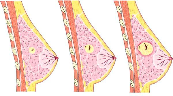 Фото - Доброякісне утворення в молочній залозі
