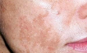 Фото - Прояви пігментних плям на обличчі під час вагітності