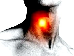Фото - Зображення горла людини