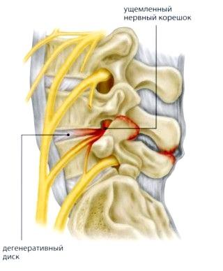 Фото - Защемлення нерва в результаті дегенеративно-дистрофічних змін хребта