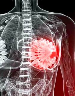 Фото - Запальний процес у грудях