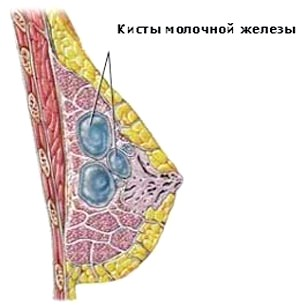 Фото - Кіста в молочній залозі