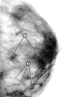 Фото - Запалення в молочній залозі