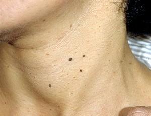Фото - Зображення бородавок в області шиї