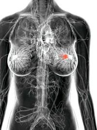Фото - Клінічні прояви мастопатії