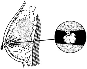 Фото - Кровососної виділення із сосків