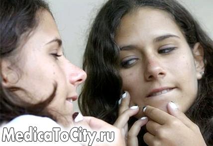 Фото - Щось сталося з обличчям? Перевірте, які продукти Ви їли і не викликають вони прищі!