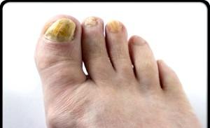 Фото - грибок нігтів на ногах