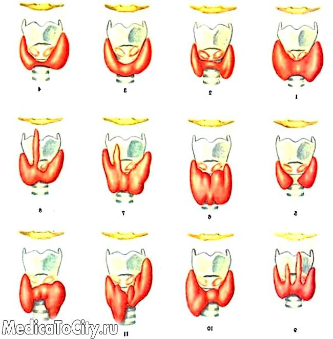 Фото - нормальні форми щитовидної залози