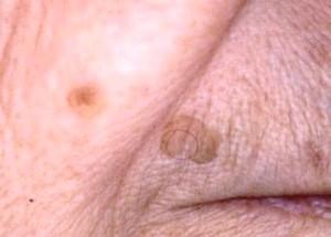 Фото - Фото метастази меланоми на обличчі