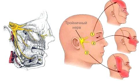 Фото - Невралгія трійчастого нерва