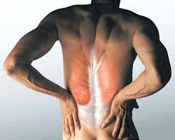 Фото - Спазми м'язів спини