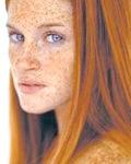 Фото - Фото - Способи лікування пігментних плям на шкірі