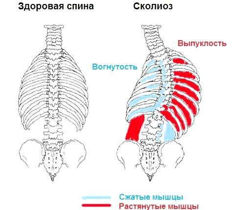 Фото - порушення міофіксаціі і защемлення нервів при сколіозі