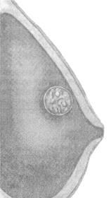 Фото - Фото схема прояви ВПЛ на грудях