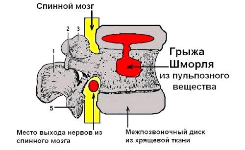 Фото - Схематичне зображення грижі Шморля