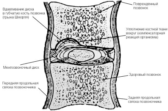 Фото - Структури, які поставлені грижі Шморля хребетних