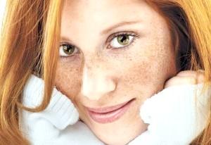 Фото - Обличчя дівчини з пігментними плямами