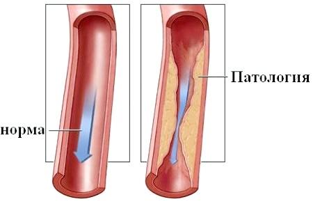 Фото - cтеноз хребетної артерії