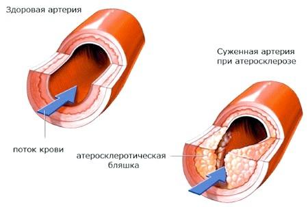 Фото - формування органічного стенозу при атеросклерозі