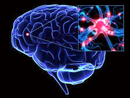 Фото - гіпоксія нейронів при стенозі хребетної артерії