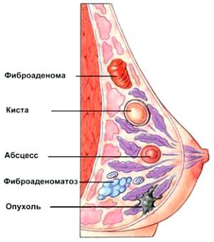 Фото - Можливі захворювання грудей