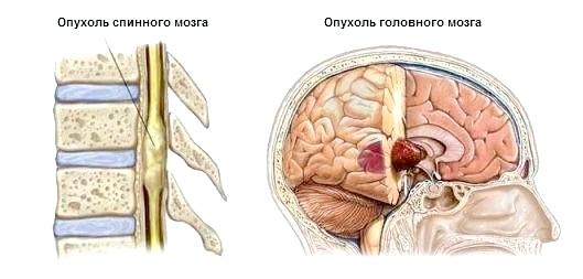 Фото - Пухлина спинного та головного мозку