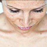 Фото - Фото - Як вивести пігментні плями на тілі