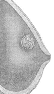 Фото - Форма мастопатії
