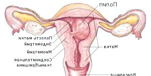 Фото - Схема матки з можливим розміщенням поліпа