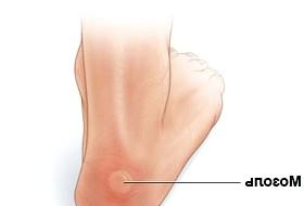 Фото - Фото одного з видів мозолів на ногах