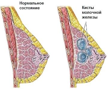 Фото - Нормальний стан грудей і кіста молочної залози