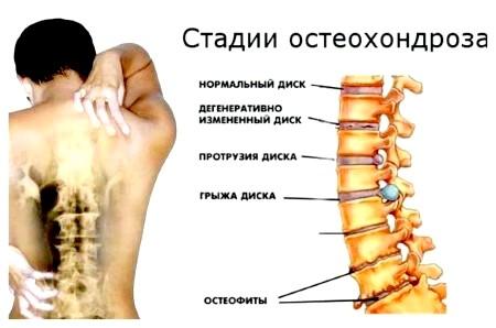 Фото - полісегментарної остеохондроз