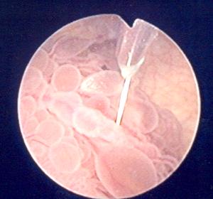 Фото - Фото папіломи сечового міхура