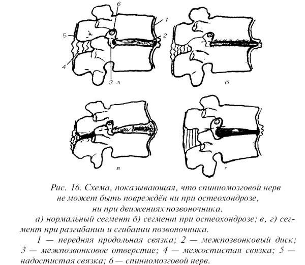 Фото - схема проходження спинномозкового нерва при остеохондрозі