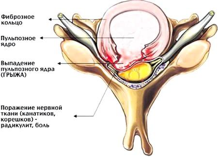 Фото - ілюстрація міжхребцевої грижі, що приводить до сильних болів в спині