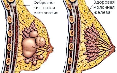 Фото - Приклад здоровою і запаленої молочної залози