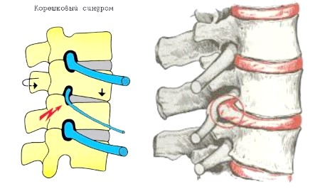 Фото - Корінцевий синдром шийного відділу